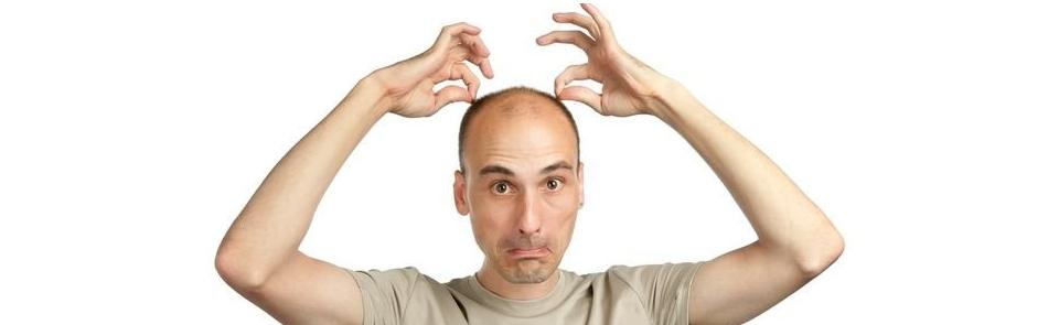 perawatan rambut botak